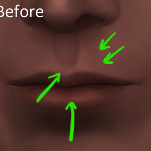 The Sims 4 Red Spots near Mouth Before Updates